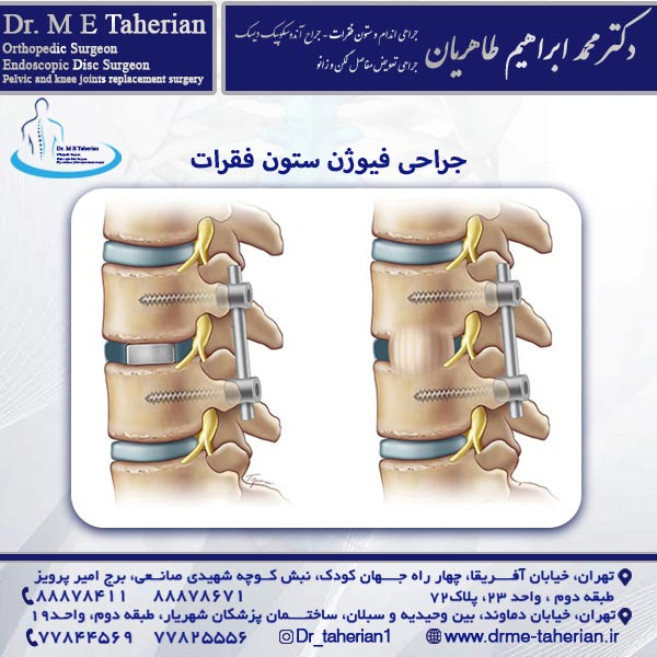 جراحی فیوژن ستون فقرات