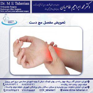 تعویض مفصل مچ دست