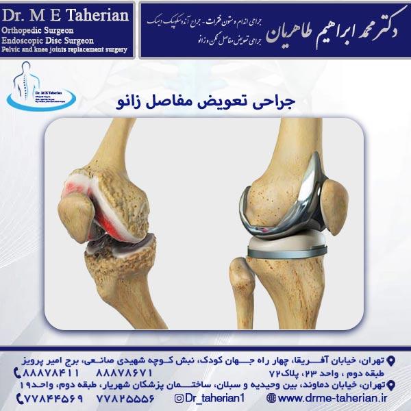 جراحی تعویض مفاصل زانو