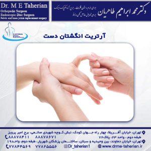 آرتریت انگشتان دست
